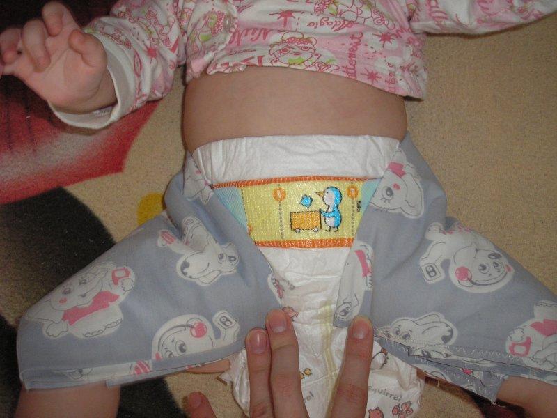 Как правильно делать парафино озокеритовые шорты новорожденному тазобедренный сустав потезирование коленного сустава