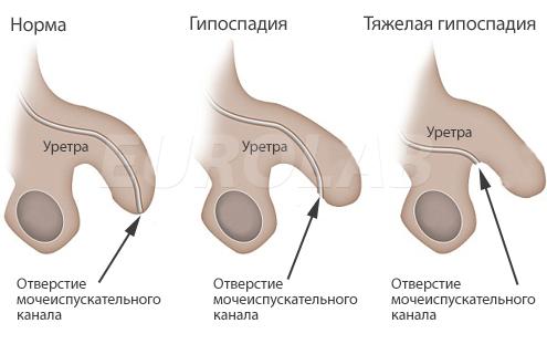 Размер полового член украинцев
